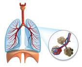 Alveoli in lungs - blood saturating by oxygen — Stock Photo
