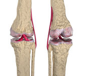 Osteoarthritis : Knee joint with ligaments and cartilages — Stock Photo