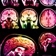Stock Photo: Colorful x-ray scof brain
