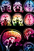 Colorful x-ray scan of brain — Stock Photo