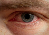 Bloodshot eye — Foto Stock