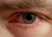 充满血丝的眼睛 — 图库照片