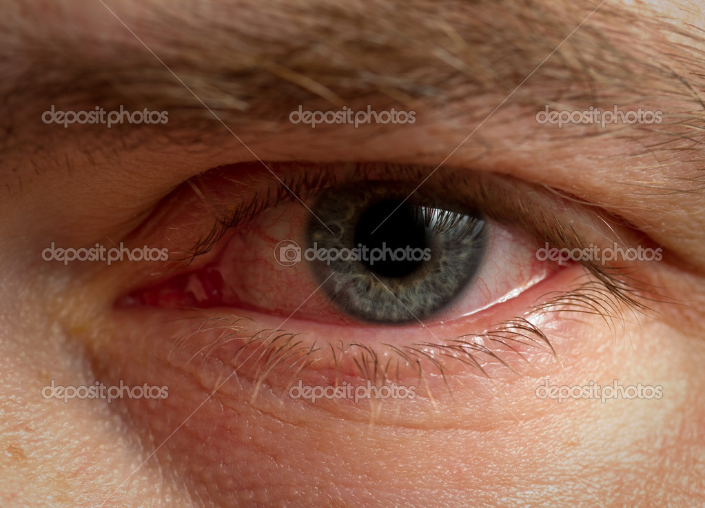 Bloodshot eye  Stock Photo #9062070