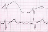 EKG close up — Stock Photo