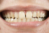 Spacing Teeth — Stock Photo