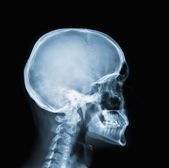 X-ray of head — Stock Photo