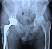 X-ray of the hip prostesis — Stock Photo