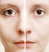 Woman with spotty skin with deep pores and blackhead and healed soft skin — Stock Photo