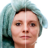 Woman with spotty skin with deep pores and blackhead and healed soft skin - before and after — Stock Photo