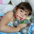 The little girl suffering from chicken pox - Stock Photo
