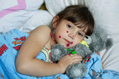 The little girl suffering from chicken pox — Stock Photo