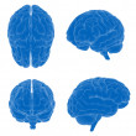 Human brain - different views — Stock Photo