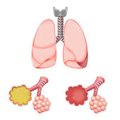 Alveoli In And Lungs — Stock Vector