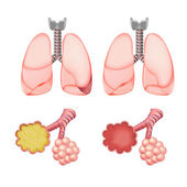 Alveoli In Lungs Set — Stock Vector