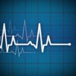 Cardiogram — Stock Photo #8555567