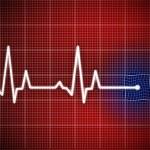 Cardiogram — Stock Photo #8555655