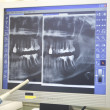 Xrays of dental work on teeth — Stock Photo