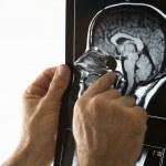 Man holding x ray. — Stock Photo