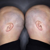 Two bald heads. — Stock Photo