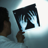 Doctor examining x-rays. — Stock Photo