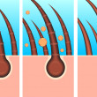 Skin hair layer illustration vector — Stockfoto