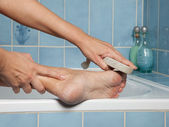 Callous feet and pumice stone — Stock Photo
