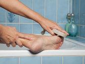 Callous feet and pumice stone — Stock Photo