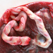 Fresh human placenta - Stock Photo