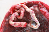 Fresh human placenta — Stock Photo
