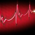 Cardiogram — Stock Photo #8792653