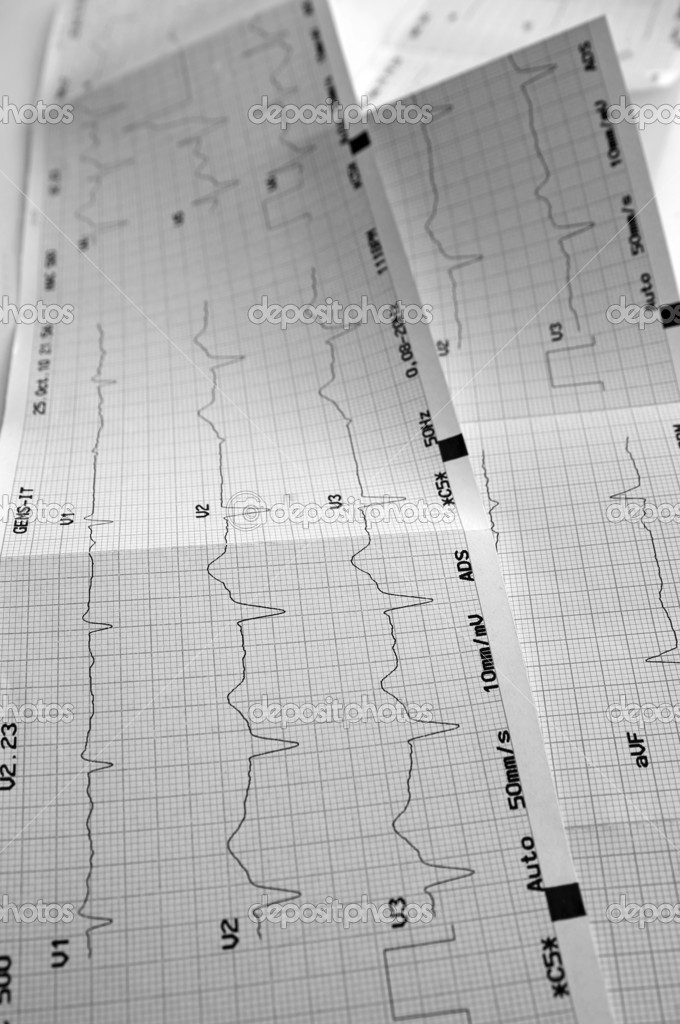 Cardiogram, ECG graph — Stock Photo #9792196