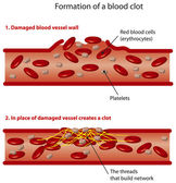Blood clots — Stock Vector