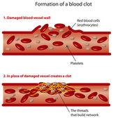 Blood clots — Stock Vector