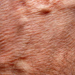 Human skin — Stock Photo #9237423
