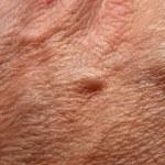 Human skin — Stock Photo #9237434