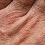 Human skin — Stock Photo #9237477