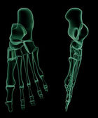 X-ray skeletal structure of the Human Foot — Stock Photo