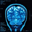 Brain MRI - Zdjcie stockowe