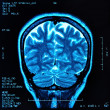 Brain MRI - Stock Photo