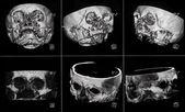 MRIs — Stock Photo