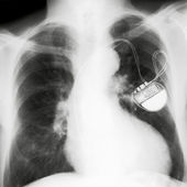 X-rayed chest — Stock Photo
