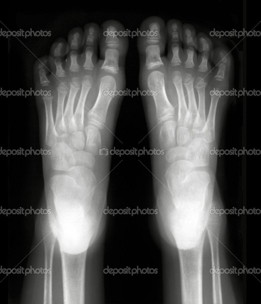 Foot fingers exposed on x-ray black and white film — Stock Photo #9712230
