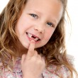 Close up portrait of girl showing missing teeth. — Stock Photo #9394112