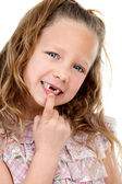 Close up portrait of girl showing missing teeth. — Stock Photo