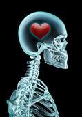 X-ray láska — Stock fotografie