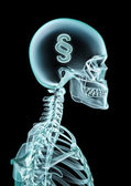 X-ray dollar — Stock Photo