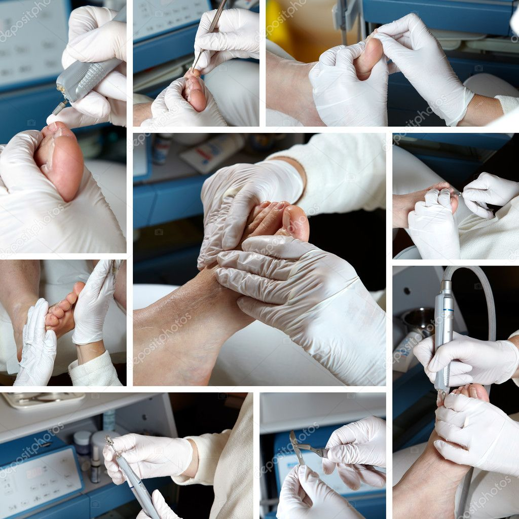 Foot Care in process  - Photo Collage  Stock Photo #9600936