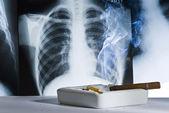 Radiografi och cigaretter — Stockfoto