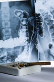 Radiography and cigarettes — Stock Photo