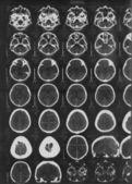 Radiografía del cerebro — Foto de Stock